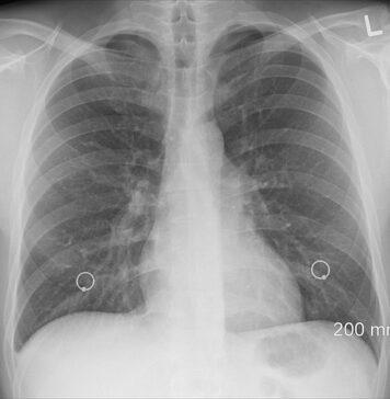 jakie są objawy zapalenia płuc